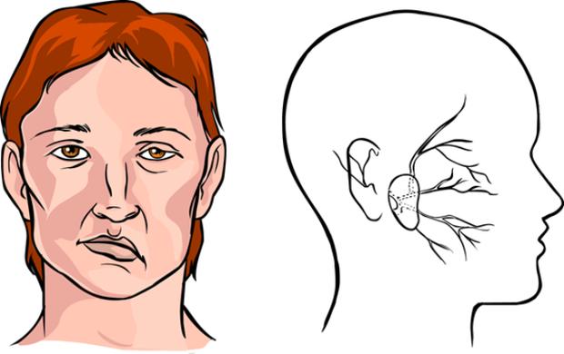 Rất nhiều trường hợp bị liệt mặt, méo miệng do trời lạnh nên bất cứ ai cũng không được chủ quan - Ảnh 1.