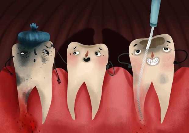 Bọc răng sứ không đảm bảo chất lượng, bạn phải đối mặt với những nguy cơ không ngờ - Ảnh 1.