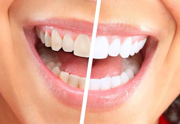 Đây là những lý do khiến bạn phải ngừng ngay thói quen sử dụng tăm để xỉa răng - Ảnh 1.