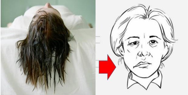 Cô gái trẻ rơi vào tình trạng méo miệng, liệt nửa mặt chỉ vì thói quen đi ngủ khi tóc còn ướt - Ảnh 3.
