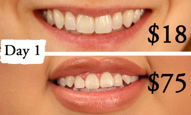 Thử làm trắng răng với 2 sản phẩm đắt và rẻ tiền, 2 cô nàng này đã nhận được kết quả thú vị - Ảnh 6.