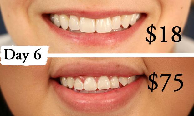 Thử làm trắng răng với 2 sản phẩm đắt và rẻ tiền, 2 cô nàng này đã nhận được kết quả thú vị - Ảnh 8.