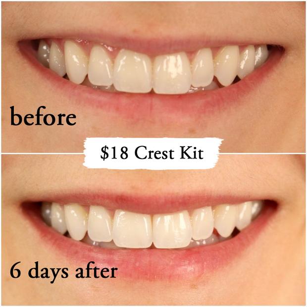 Thử làm trắng răng với 2 sản phẩm đắt và rẻ tiền, 2 cô nàng này đã nhận được kết quả thú vị - Ảnh 9.