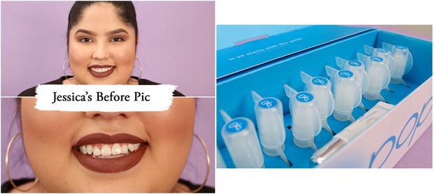 Thử làm trắng răng với 2 sản phẩm đắt và rẻ tiền, 2 cô nàng này đã nhận được kết quả thú vị - Ảnh 4.