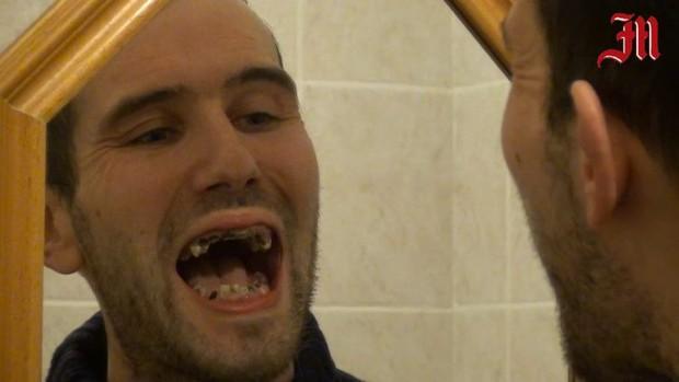 Nghiện đồ uống có ga: chàng trai trẻ phải nhổ tới 27 chiếc răng sâu và cấy ghép lại bộ răng mới - Ảnh 1.