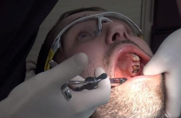Nghiện đồ uống có ga: chàng trai trẻ phải nhổ tới 27 chiếc răng sâu và cấy ghép lại bộ răng mới - Ảnh 3.