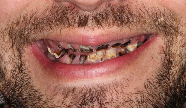Nghiện đồ uống có ga: chàng trai trẻ phải nhổ tới 27 chiếc răng sâu và cấy ghép lại bộ răng mới - Ảnh 2.
