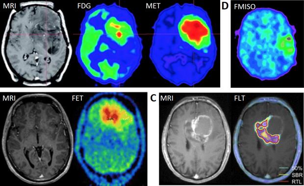 Chuyên gia cảnh báo: 2 dấu hiệu đau đầu không nên chủ quan vì có thể dẫn đến nguy cơ tử vong - Ảnh 3.