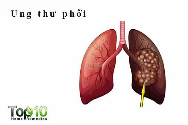 Tác hại kinh hoàng của khói thuốc lá - Ảnh 2.
