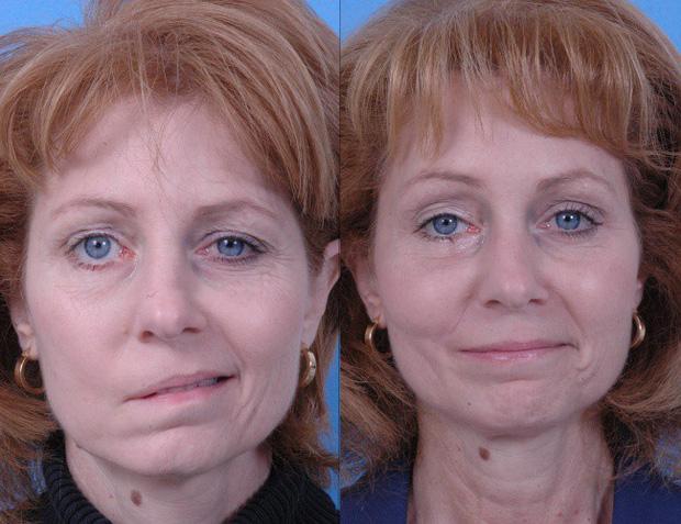 7 triệu chứng đột quỵ ở phụ nữ dù còn trẻ chị em cũng không được bỏ qua - Ảnh 3.