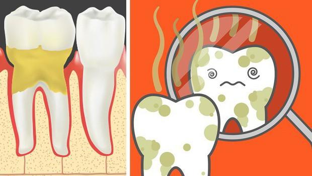 Cẩn thận mắc bệnh viêm nướu răng nếu gặp phải 5 dấu hiệu sau - Ảnh 2.