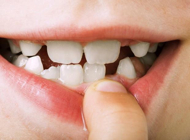 Cẩn thận mắc bệnh viêm nướu răng nếu gặp phải 5 dấu hiệu sau - Ảnh 4.