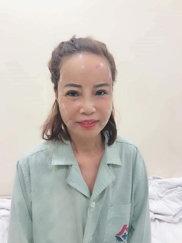 Không chỉ đưa chồng trẻ đi nhấn mí, cô dâu 62 tuổi gây bất ngờ với gương mặt trẻ ra 20 tuổi nhờ thẩm mỹ - Ảnh 4.