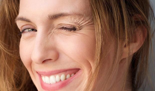 Thời tiết chuyển lạnh mà bỏ qua bước dưỡng ẩm thì làn da của bạn sẽ gặp phải 5 vấn đề sau - Ảnh 5.