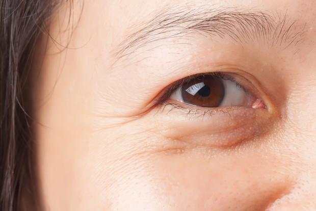 Thời tiết chuyển lạnh mà bỏ qua bước dưỡng ẩm thì làn da của bạn sẽ gặp phải 5 vấn đề sau - Ảnh 6.