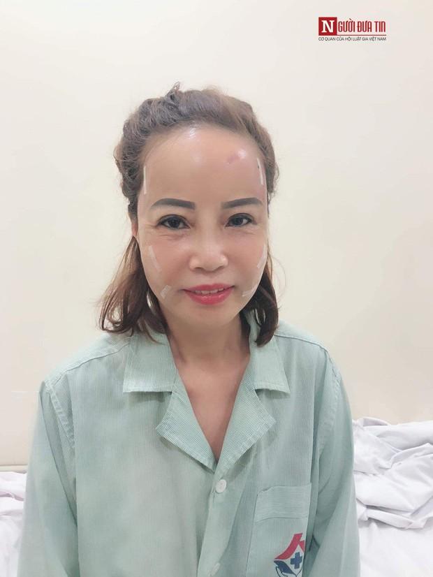 Chú rể 26 lấy vợ 62 tuổi: Lấy vợ xong, bị nhiều người gọi là mắt lươn nên đi nhấn mí - Ảnh 5.