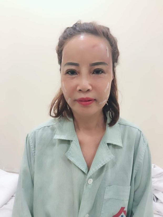 Cô dâu 62 tuổi ở Cao Bằng tiết lộ sốc về diện mạo mới như thiếu nữ 18 - Ảnh 5.