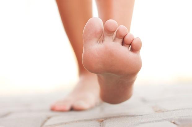 Thấy gót chân bị nứt nẻ nghiêm trọng có thể là do những nguyên nhân sau đây gây ra - Ảnh 2.