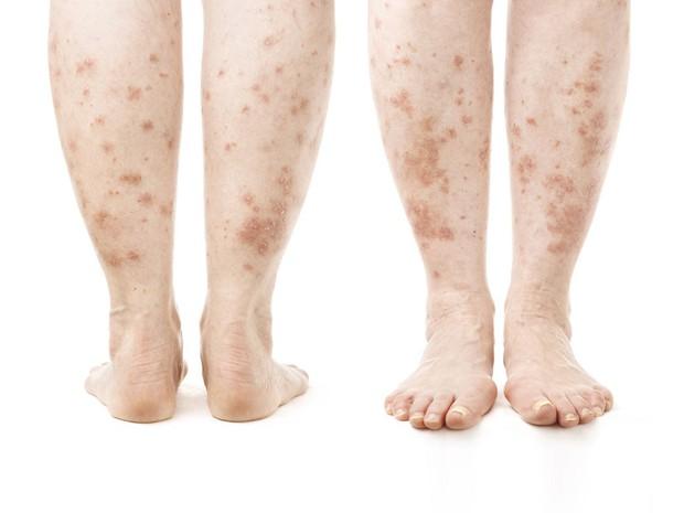 Thấy gót chân bị nứt nẻ nghiêm trọng có thể là do những nguyên nhân sau đây gây ra - Ảnh 4.
