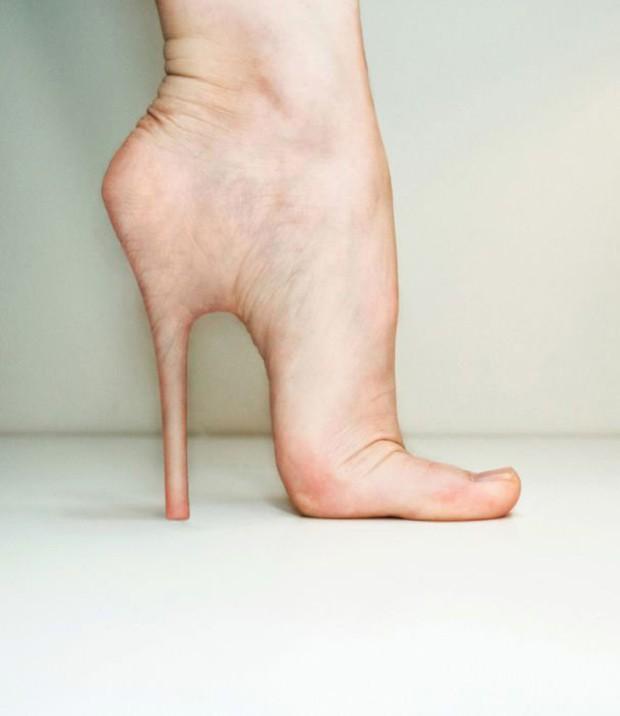 Thấy gót chân bị nứt nẻ nghiêm trọng có thể là do những nguyên nhân sau đây gây ra - Ảnh 5.