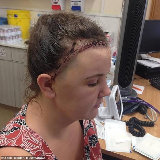 Cô gái 24 tuổi không biết mình bị u não vì những dấu hiệu tưởng chừng như vô hại - Ảnh 4.