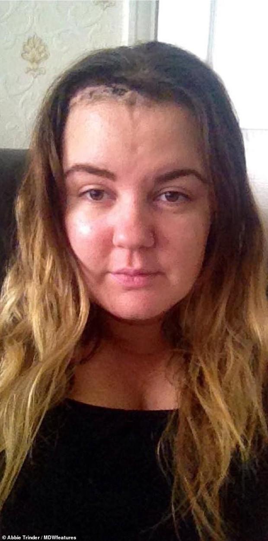 Cô gái 24 tuổi không biết mình bị u não vì những dấu hiệu tưởng chừng như vô hại - Ảnh 5.