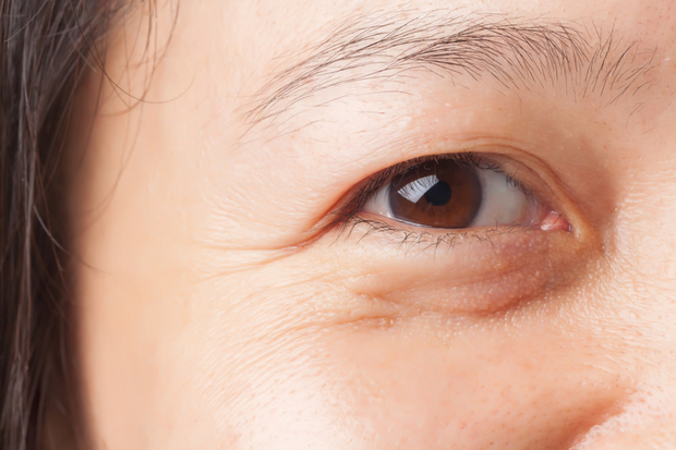 4 dấu hiệu cảnh báo làn da đang lão hóa sớm vì thói quen chăm sóc da không đúng cách - Ảnh 2.