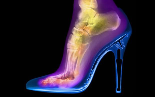 Những sự thật kinh ngạc mà bạn chỉ có thể nhìn thấy dưới ống kính X-quang - Ảnh 3.