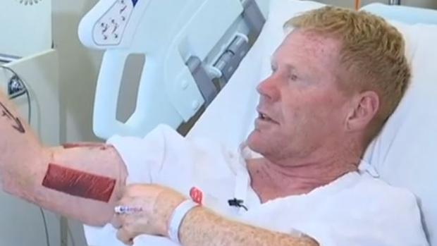 Úc: Tấn công người đang lướt ván, cá mập bị chú trung niên đấm lên bờ xuống ruộng - Ảnh 2.