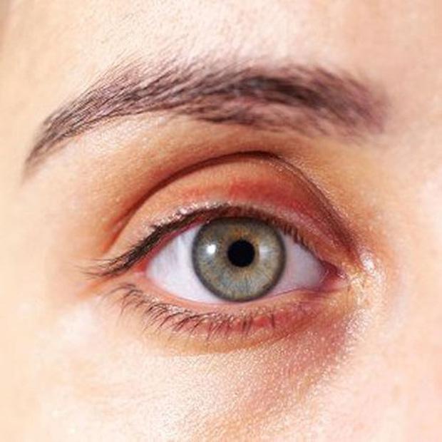 9 biểu hiện giúp bạn phát hiện bệnh qua khuôn mặt - Ảnh 3.