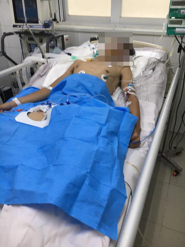 Người đàn ông bị sét đánh khi đang đá bóng đã tử vong - Ảnh 1.