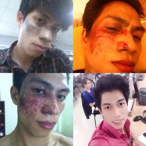 Không xin được việc vì vết chàm lớn trên gương mặt, thanh niên quyết tâm lột xác diện mạo và cái kết - Ảnh 3.