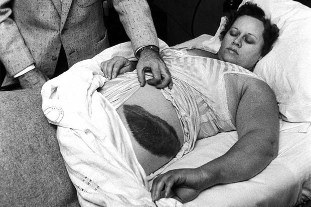 Bà cô xui xẻo nhất lịch sử: Đang ngủ bị thiên thạch rơi trúng người, kiện tụng tốn kém để rồi mất cả tiền lẫn chồng - Ảnh 1.