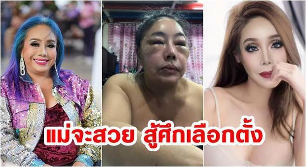 Nhan sắc hiện tại của nữ đại gia Thái Lan đổi chồng như thay áo sau cuộc phẫu thuật trở về tuổi 30 - Ảnh 1.