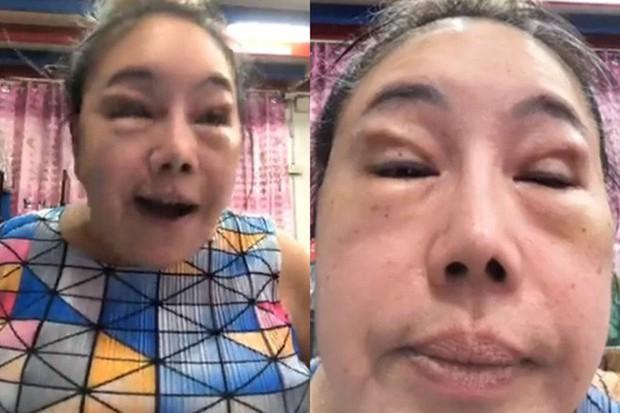 Nhan sắc hiện tại của nữ đại gia Thái Lan đổi chồng như thay áo sau cuộc phẫu thuật trở về tuổi 30 - Ảnh 2.