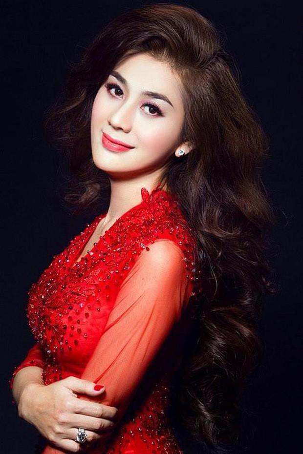 Sao Việt ngược đãi bản thân vì stress: Tự bóc tay đến rỉ máu, thường xuyên nghĩ đến việc tự tử - Ảnh 10.
