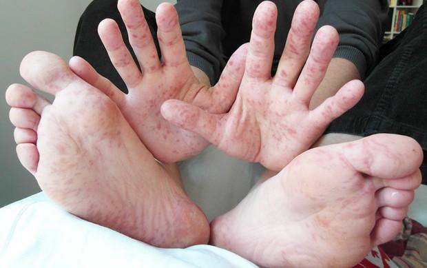 Bệnh tay chân miệng - Những điều cả người lớn và trẻ nhỏ phải biết- Ảnh 4.