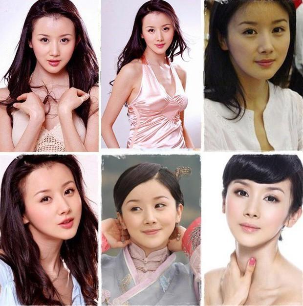 Lãnh hậu quả từ phẫu thuật thẩm mỹ nhưng những sao nữ châu Á này đã được bù đắp bằng tình yêu hoàn mỹ - Ảnh 10.