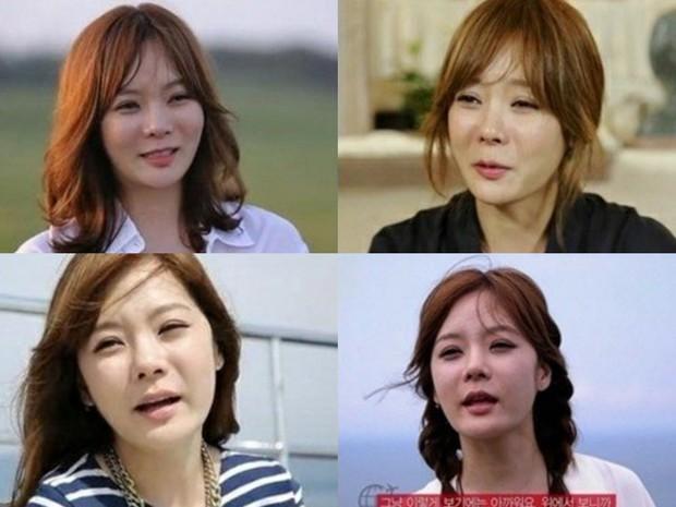 Lãnh hậu quả từ phẫu thuật thẩm mỹ nhưng những sao nữ châu Á này đã được bù đắp bằng tình yêu hoàn mỹ - Ảnh 2.