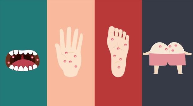 Bệnh tay chân miệng - Những điều cả người lớn và trẻ nhỏ phải biết - Ảnh 2.
