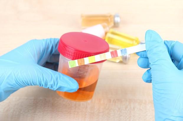 5 dấu hiệu tố cáo có thể bạn đã mắc bệnh viêm bàng quang - Ảnh 4.