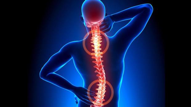 Tình trạng đau nhức vùng cổ, cứ tưởng là bình thường nhưng lại cảnh báo nhiều căn bệnh tiềm ẩn mà bạn không hề hay biết - Ảnh 2.