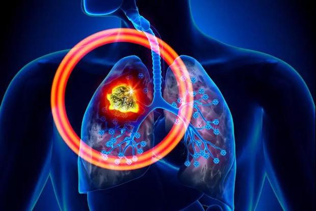 Đây là 6 căn bệnh ung thư gây tử vong hàng đầu thế giới nhưng nhiều người lại chưa nắm rõ - Ảnh 2.