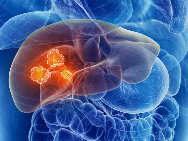 Đây là 6 căn bệnh ung thư gây tử vong hàng đầu thế giới nhưng nhiều người lại chưa nắm rõ - Ảnh 4.