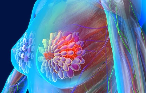 Đây là 6 căn bệnh ung thư gây tử vong hàng đầu thế giới nhưng nhiều người lại chưa nắm rõ - Ảnh 6.