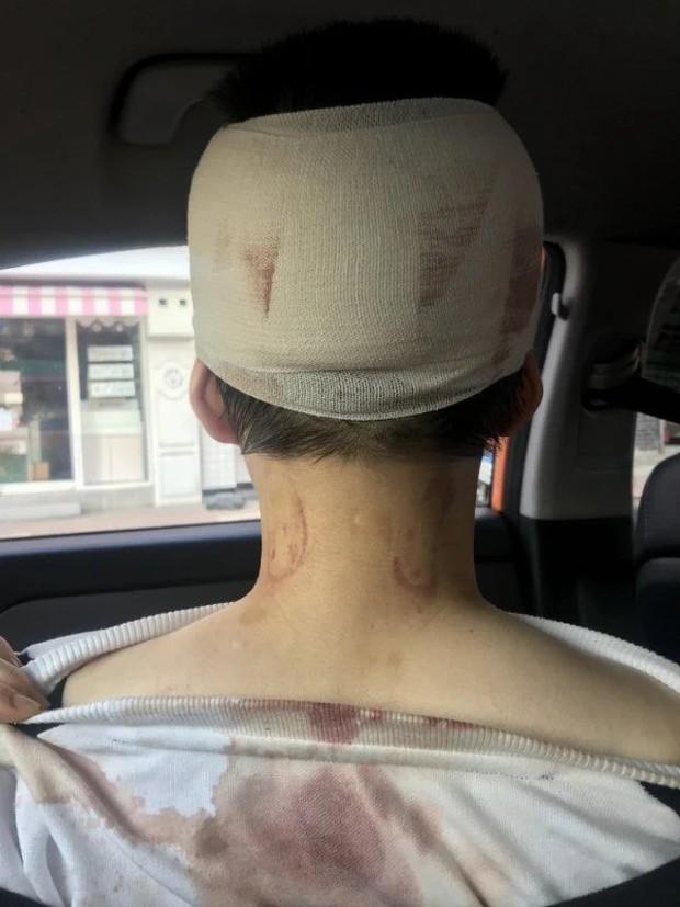 Hàn Quốc: 2 cô gái trẻ bị 4 người đàn ông tấn công chỉ vì vẻ ngoài thiếu nữ tính và để tóc ngắn, người dân bức xúc yêu cầu Nhà Xanh vào cuộc - Ảnh 3.