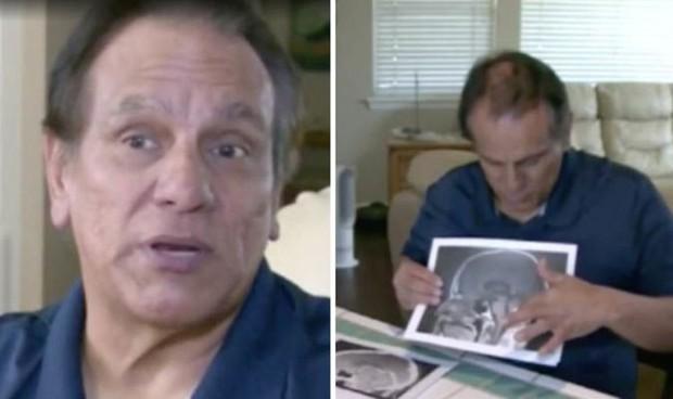 Mỹ: Người đàn ông thấp thỏm chuẩn bị phẫu thuật u não, trước ngày lên bàn mổ, khối u sợ quá biến mất luôn - Ảnh 3.