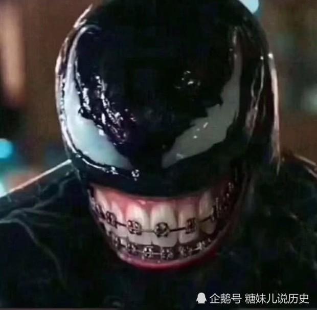 Quá yêu mến gã Venom, netizen Trung sắm ngay tặng chàng một bộ niềng răng - Ảnh 2.