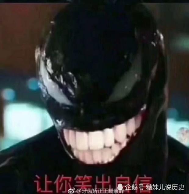 Quá yêu mến gã Venom, netizen Trung sắm ngay tặng chàng một bộ niềng răng - Ảnh 3.