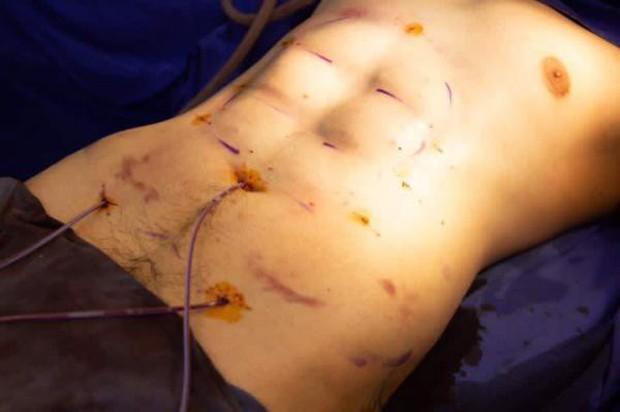 Một trào lưu phẫu thuật thẩm mỹ mới: Đến 6 múi còn giả thì cái gì trên đời này là thật đây? - Ảnh 3.